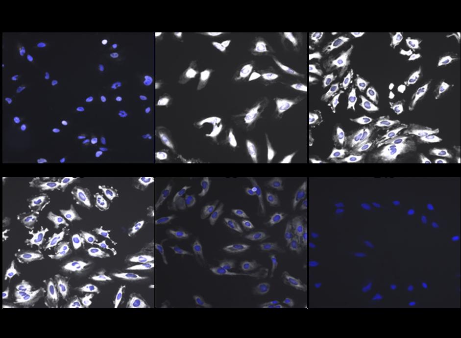 20-CEP-78634 S6 Ribosome Figure 1