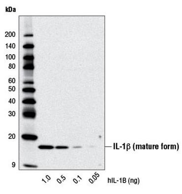 Senescence-Associated Secretory Phenotype (SASP)