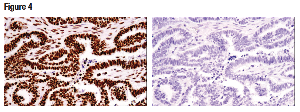 HC analysis of paraffin-embedded human serous papillary carcinoma of the ovary using Tri-Methyl-Histone H3 (Lys36) (D5A7)