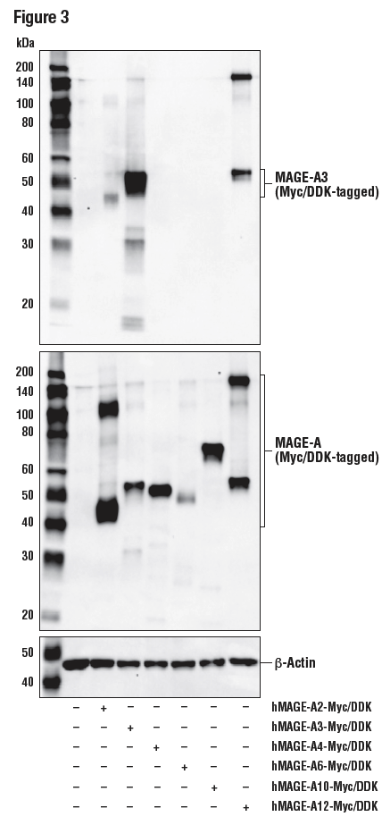 WB analysis of extracts from 293T cells using MAGE-A3 (E9S4X) (upper), DYKDDDK Tag Antibody (middle), and β-Actin (D6A8) (lower).