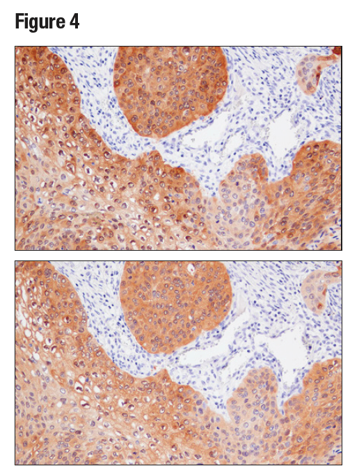 IHC analysis of paraffin-embedded human squamous cell lung carcinoma using MAGE-A4 (E7O1U) (upper) or MAGE-A4 Antibody (lower)