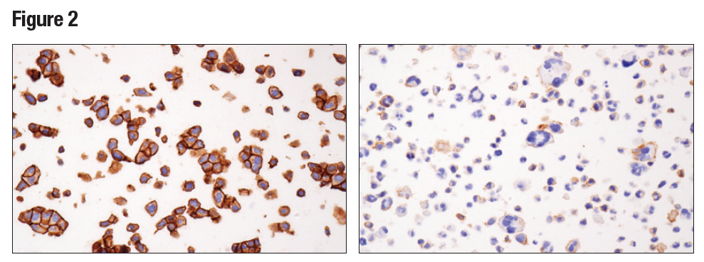 IHC analysis of paraffin-embedded RT4 cell pellet (left) or HDLM-2 cell (right) using Nectin-2/CD112 (D8D3F)