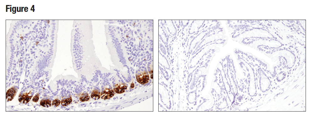 IHC analysis of paraffin-embedded normal mouse small intestine (left) and colon (right) using Olfm4 (D6Y5A)
