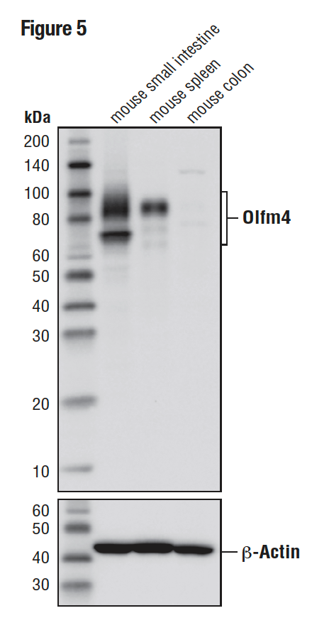 WB analysis of extracts from mouse small intestine (positive), mouse spleen (positive), and mouse colon (negative) using Olfm4 (D6Y5A) (upper)