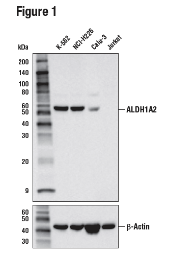WB analysis of extracts from various cell lines using ALDH1A2 (E6O6Q)