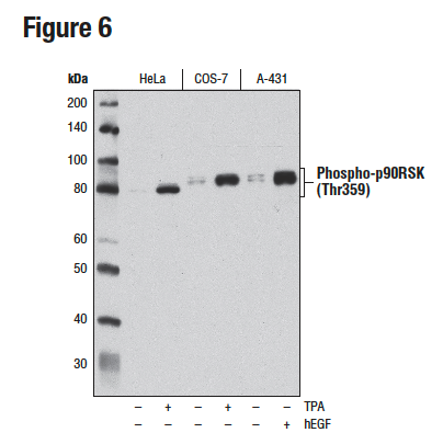 WB analysis of extracts from HeLa, COS-7, and A-431 cells using Phospho-p90RSK (Thr359) (D1E9)