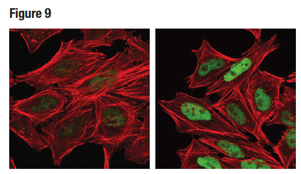 Confocal ICC analysis of HeLa cells using Phospho-c-Jun (Ser73) (D47G9) (green)