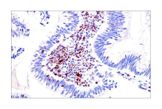 TIGIT positive IHC of human colon adenocarcinoma.