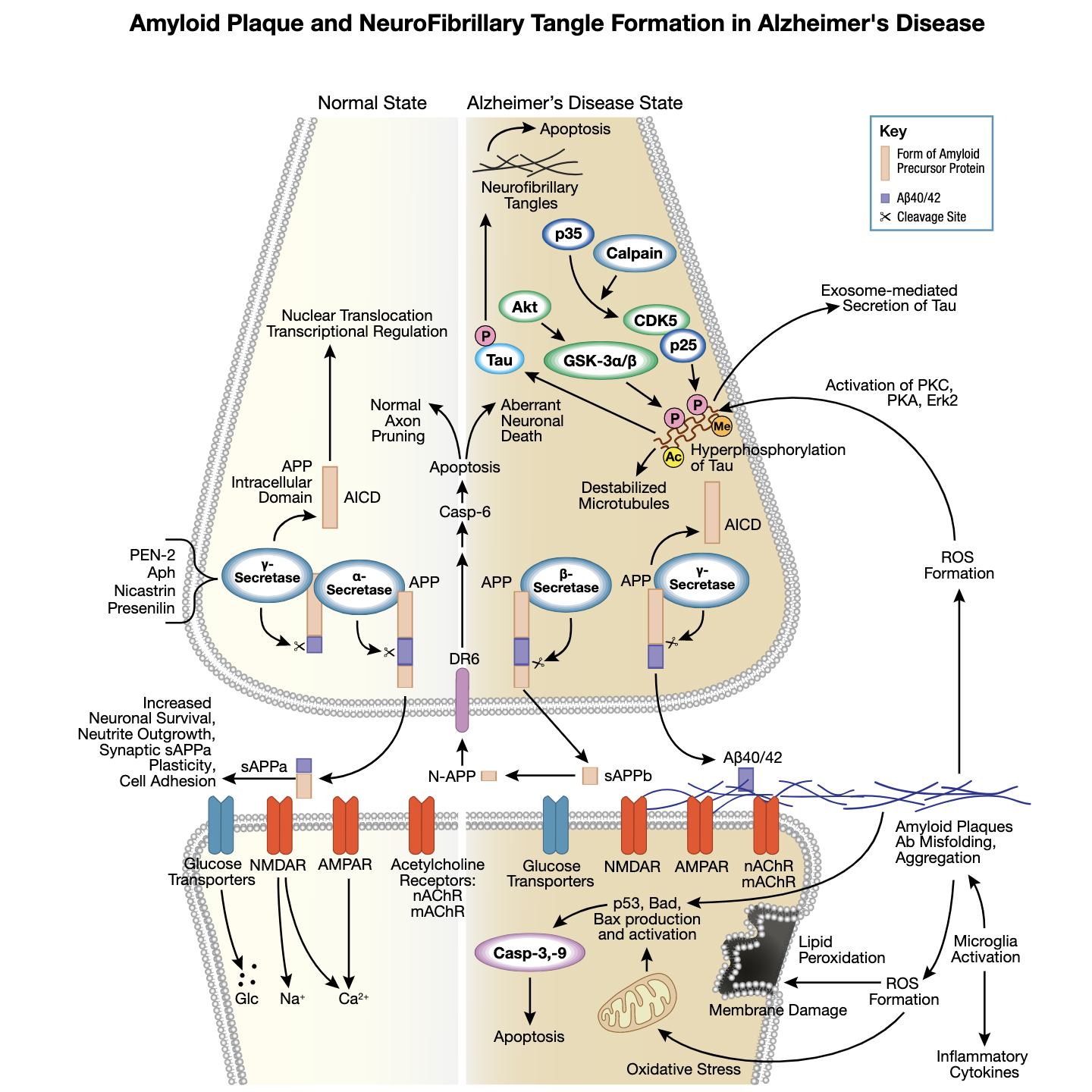 Figure 1 Amyloid Plaque in Alzheimers Interactive Pathway