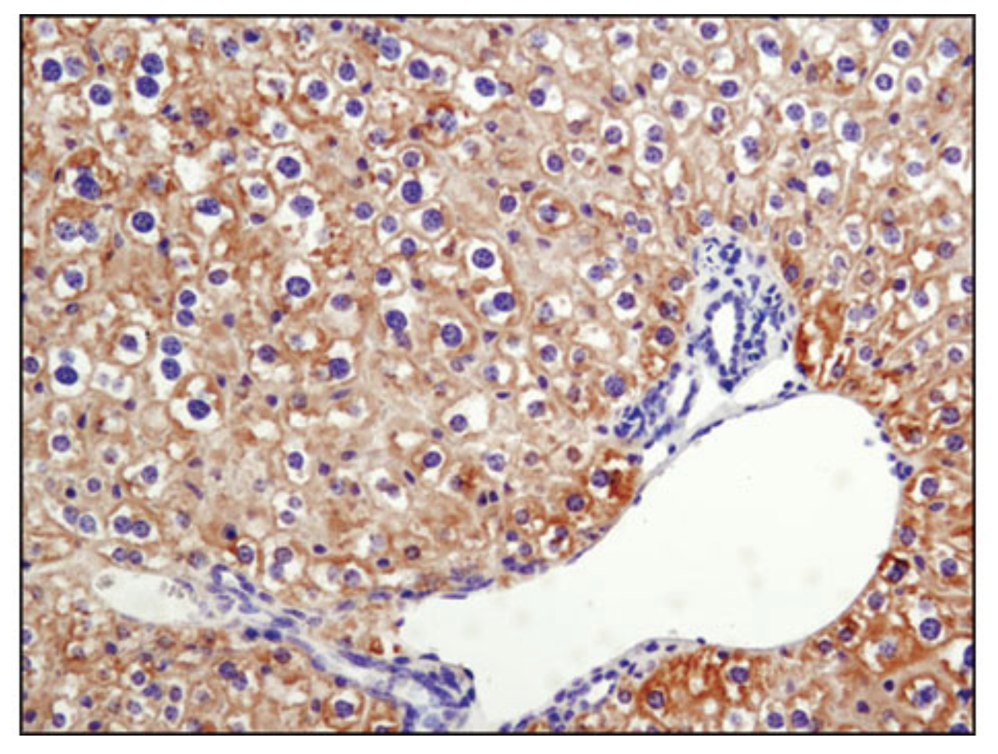 Phospho-Acetyl-CoA Carboxylase (Ser79) (D7D11) Rabbit mAb #11818