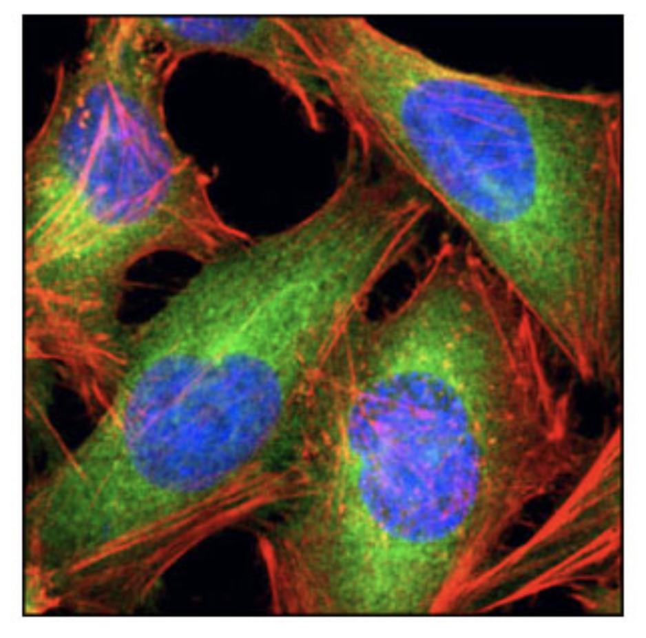 Fatty Acid Synthase (C20G5) Rabbit mAb #3180